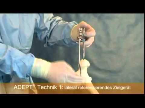 Teil 1 von 2 Properative Planung Hüftkappe in Hüfte operieren
